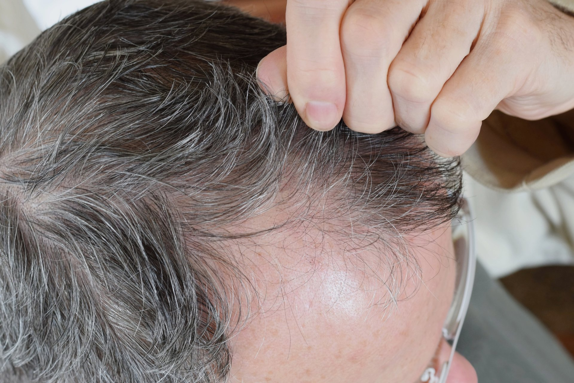 hair loss treatments clifton park